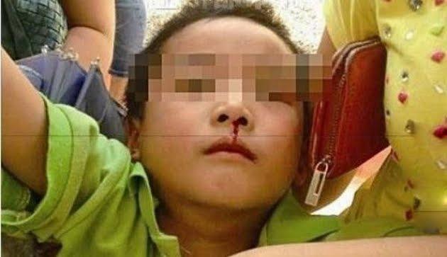 Anak Berumur 2 Tahun Mimisan, Dibawa dan Sampai Rumah Sakit Langsung Meninggal