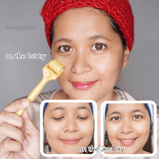 my-first-impression-using-derma-roller-1-m.jpg