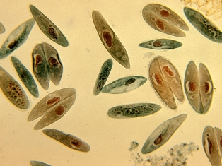 Paramecium may reproduce sexually by means of
