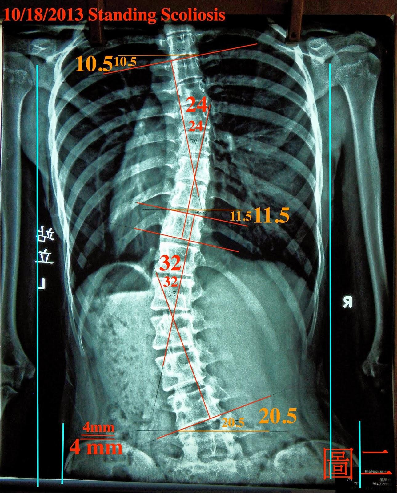 脊椎側彎, 脊椎度數, 脊椎側彎矯正, 脊椎側彎治療, 脊椎側彎矯正成功案例, 脊椎側彎 推薦, 脊椎側彎 台中