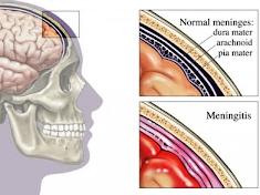Obat Radang Selaput Otak Herbal