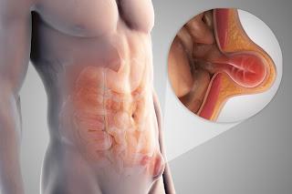 http://www.punyahospitals.com/lap-inguinal-hernia-repair-tep-and-tapp/