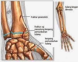 Obat Alami Patah Tulang Tangan