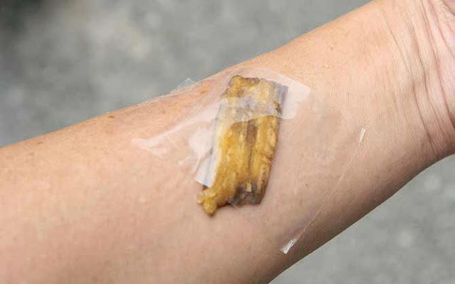 She taped the banana peel on her skin. What happens next is indeed mind blowing!