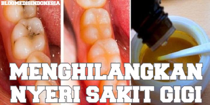 Cara Alami Untuk Menyembuhkan Sakit Gigi Berlubang Brad Erva Doce Info