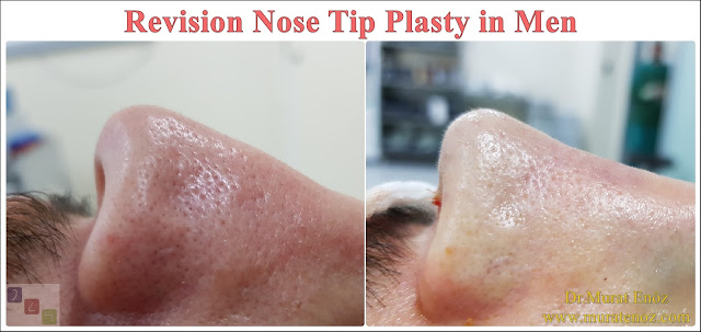Revision Nose Tip Plasty in Men - Revision Nose Tip Surgery For Men - Revision Male Nose Tip Plasty Operation in Istanbul - Men's Nose Tip Plasty - Revision Nose Tip Reshaping For Men - Mens Nose Tip Plasty in Turkey - Revision Nose Tip Plasty For Men - Revision Nose Tip Plasty For Men Istanbul - Revision Nose Tip Aesthetic for Men - Revision Male Nose Tip Plasty Operation - Revision Male Nose Tip Plasty Surgery in Istanbul - Male Nose Tip Plasty Surgery in Turkey - Revision Male Nose Tip Aesthetic Surgery - Revision Nose Tip Plasty In Mens Istanbul