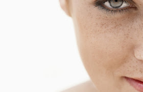 Remove Skin Pigmentation on Face Beauty Tips