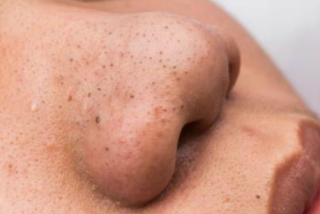 Blackheads have a texture that is harder than white comedones, very small and black so that they can appear in plain view