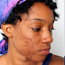HOW TO DEAL WITH PIMPLES AND BLACK HEADS