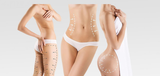 Vaser Liposuction in Hyderabad