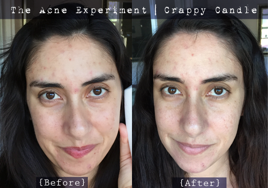 Caru Witch Hazel + Bee Balm Before & After