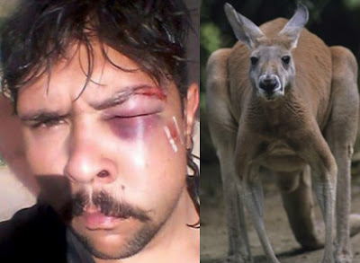 hunter headbutted by kangaroo