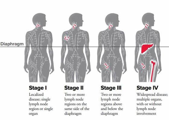 Hodgkin's disease staging