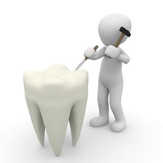 Cara Aman Menghilangkan Karang Gigi Sendiri Di Rumah Tanpa Menimbulkan Rasa Sakit Secara Cepat