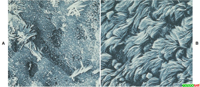 Electron micrographs showing effect of Mycoplasma pneumoniae on ciliated tracheal cells.