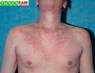 Fig. 5.56 Acute graft-versus-host disease