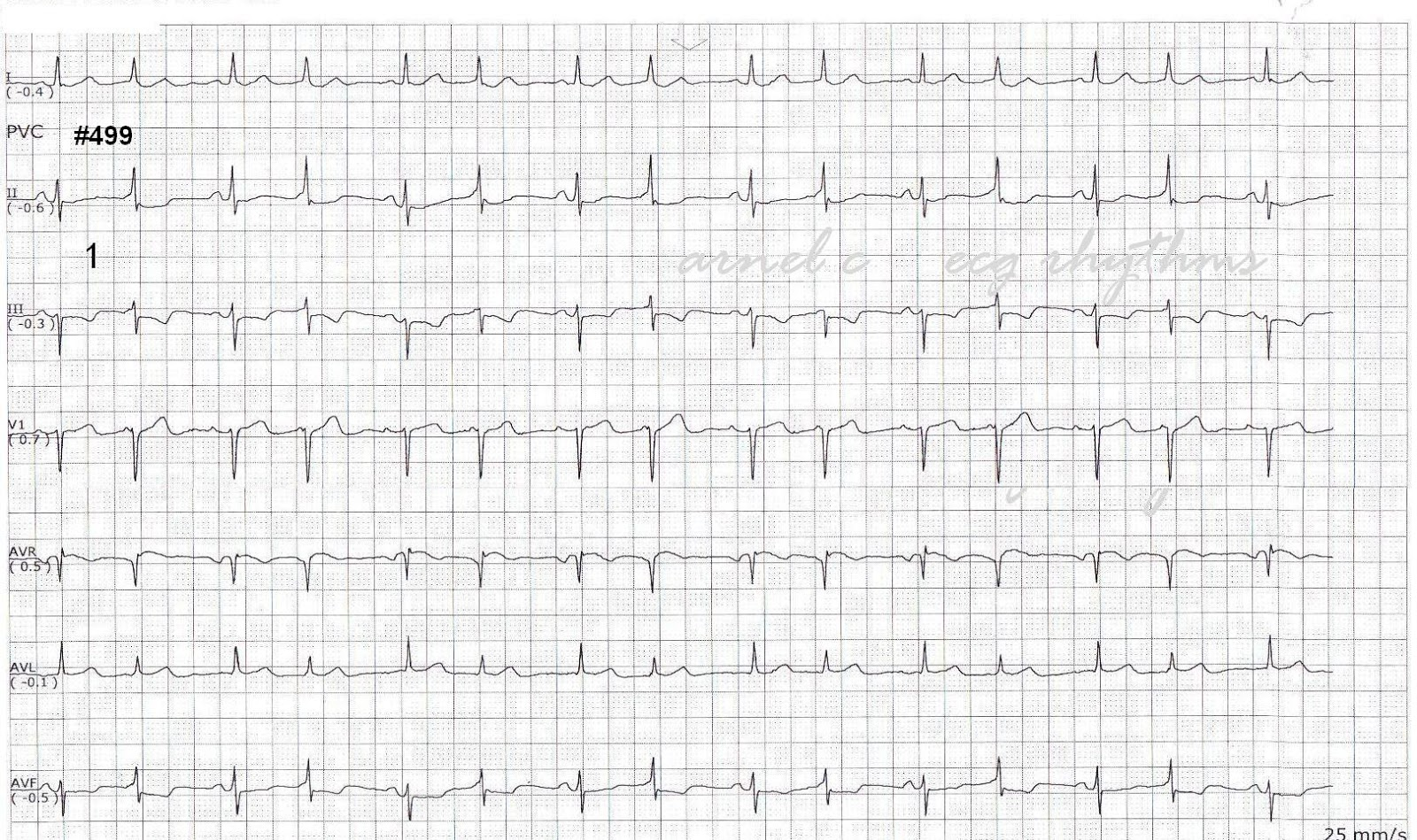 ECG Rhythms: Intermittent preexcitation, QRS alternans or