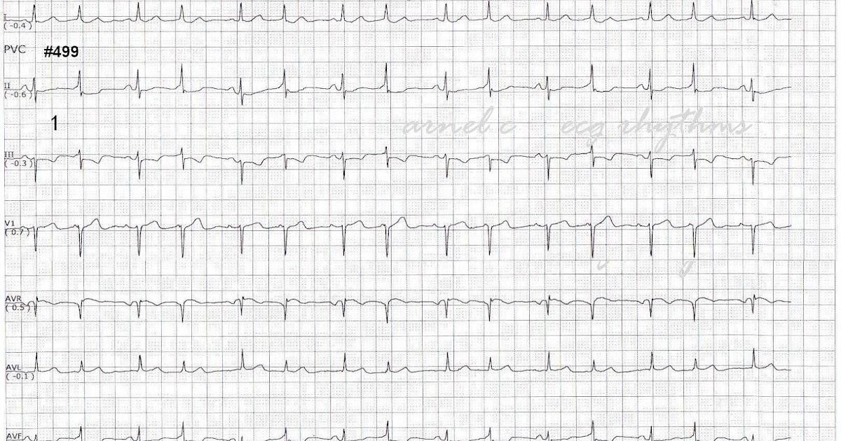ECG Rhythms: Intermittent preexcitation, QRS alternans or