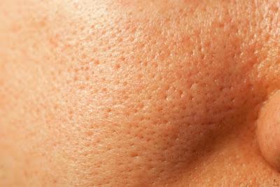 Tratamento,Poros dilatados,acne,espinha