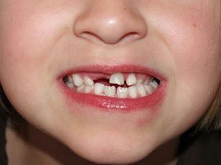 punca gigi tidak tersusun (tidak rata)