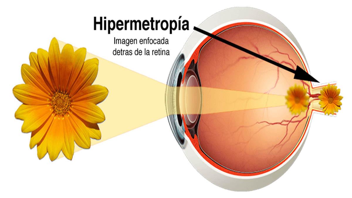 96fc93f999 El ojo hipermétrope es pequeño. Según la magnitud del error, puede ser: