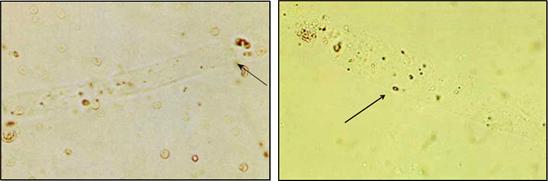 cilindros hialinos presentes na urina