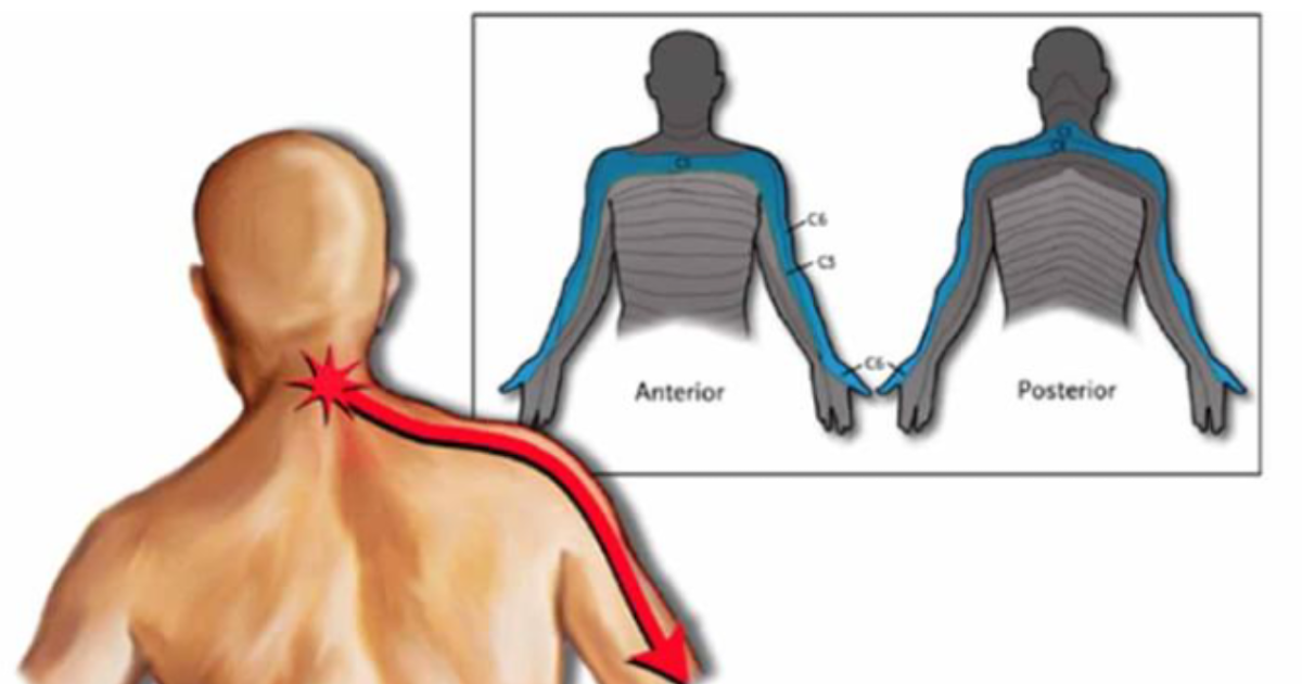 Osteochondrosis intervertebrale che questo