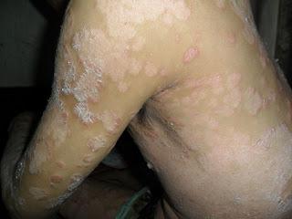 Biểu hiện của bệnh vẩy nến là gì ?
