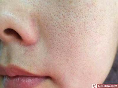 8 Cara Mengecilkan Pori Pori Wajah Terbaik - Acilhow.com