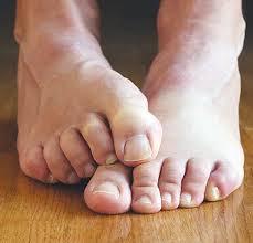 حكة القدمين الاسباب والعلاج