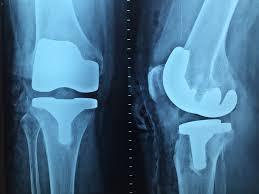 Makanan Pantangan Untuk Penderita Radang Nyeri Sendi Lutut