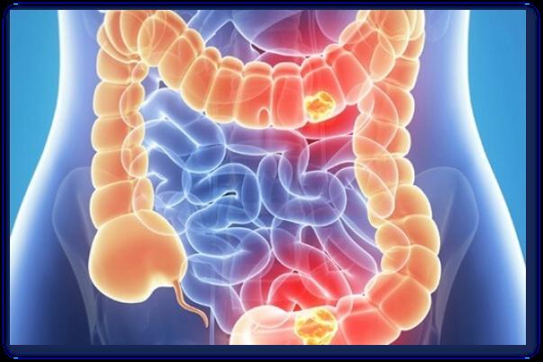Ceaiuri pentru cancer de colon