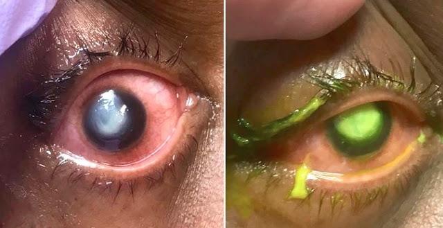 Memakai Lensa Saat Tidur, Kornea Mata Wanita Ini Dimakan Bakteri Hampir Alami Kebutahan