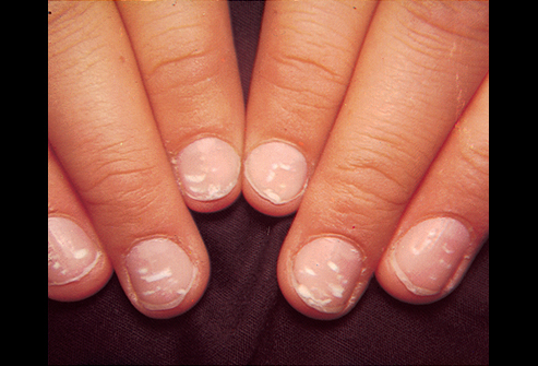 What Causes Finger Nails To L Awesome Nail