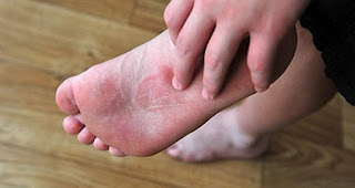 what causes itchy feet