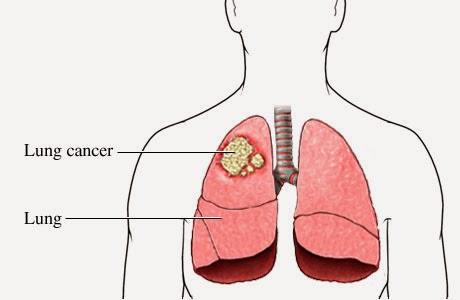 triệu chứng và bài thuốc điều trị bệnh ung thư phổi