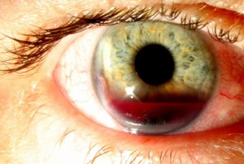 Picture showing Hyphema in Anterior Chamber