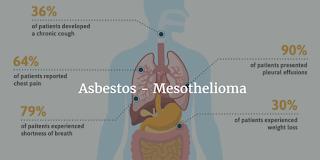 Asbestos – Mesothelioma