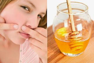 manfaat madu buat wajah, madu untuk wajah, madu asli, manfaat madu, madu wajah, madu murni, masker madu, madu jerawat, madu untuk kulit,