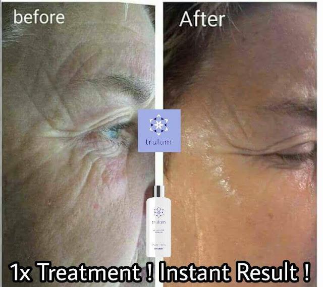 Jual Serum Penghilang Keriput Trulum Skincare Benakat Muara Enim