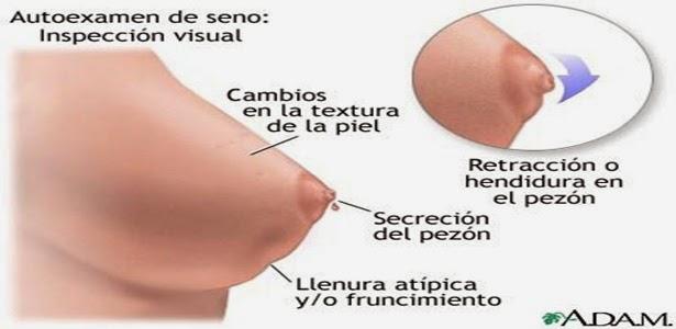 fibrosis quistica linear unit senos sintomas