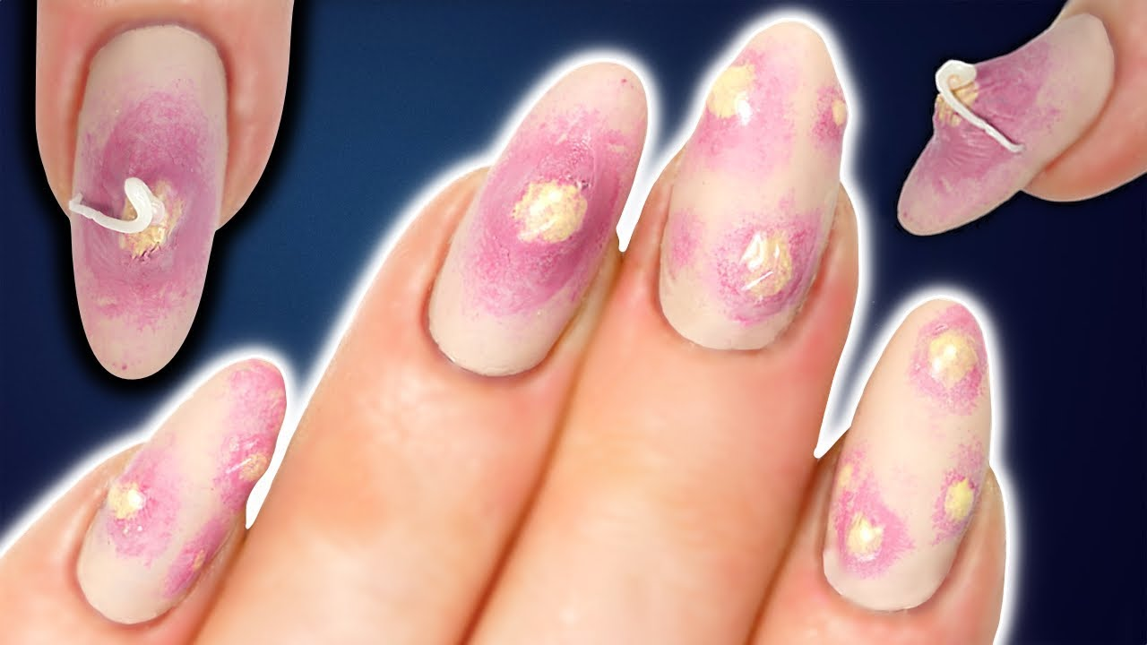 Pimple Popping Nail Art For OCD Sufferers