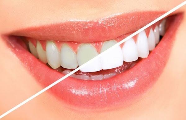 Resep Rumahan Untuk Cara Memutihkan Gigi Kuning secara Alami