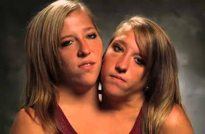 História de Abigail e Brittany Hensel