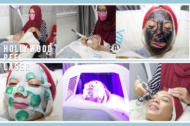 Facial+di+klinik+kecantikan+youth+beauty+clinic+kemang+untuk+kulit+bejerawat