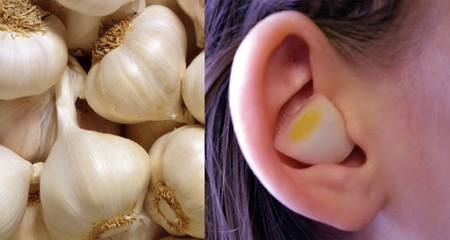 Put A Clove Of Garlic In Your Ear And Watch How It Magically Cures Your Recurrent Headaches!