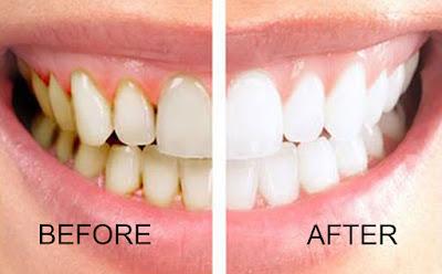 Cara alami menghilangkan karang gigi secara alami