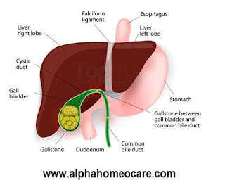 Gallstones, Causes, Symptoms, Diagnosis, Homeopathy treatment and Management
