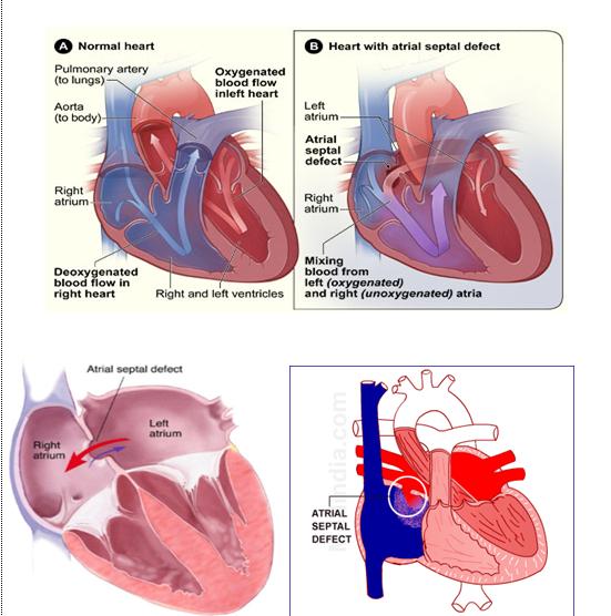 Hipertenzija: liaudies gynimo gydymas