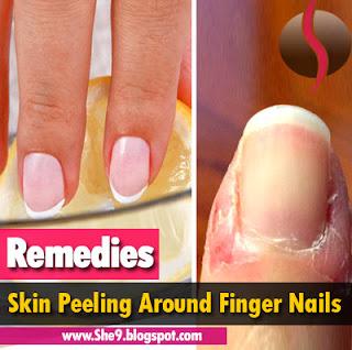 Dry Scaly Skin Around Fingernails Diydry Co